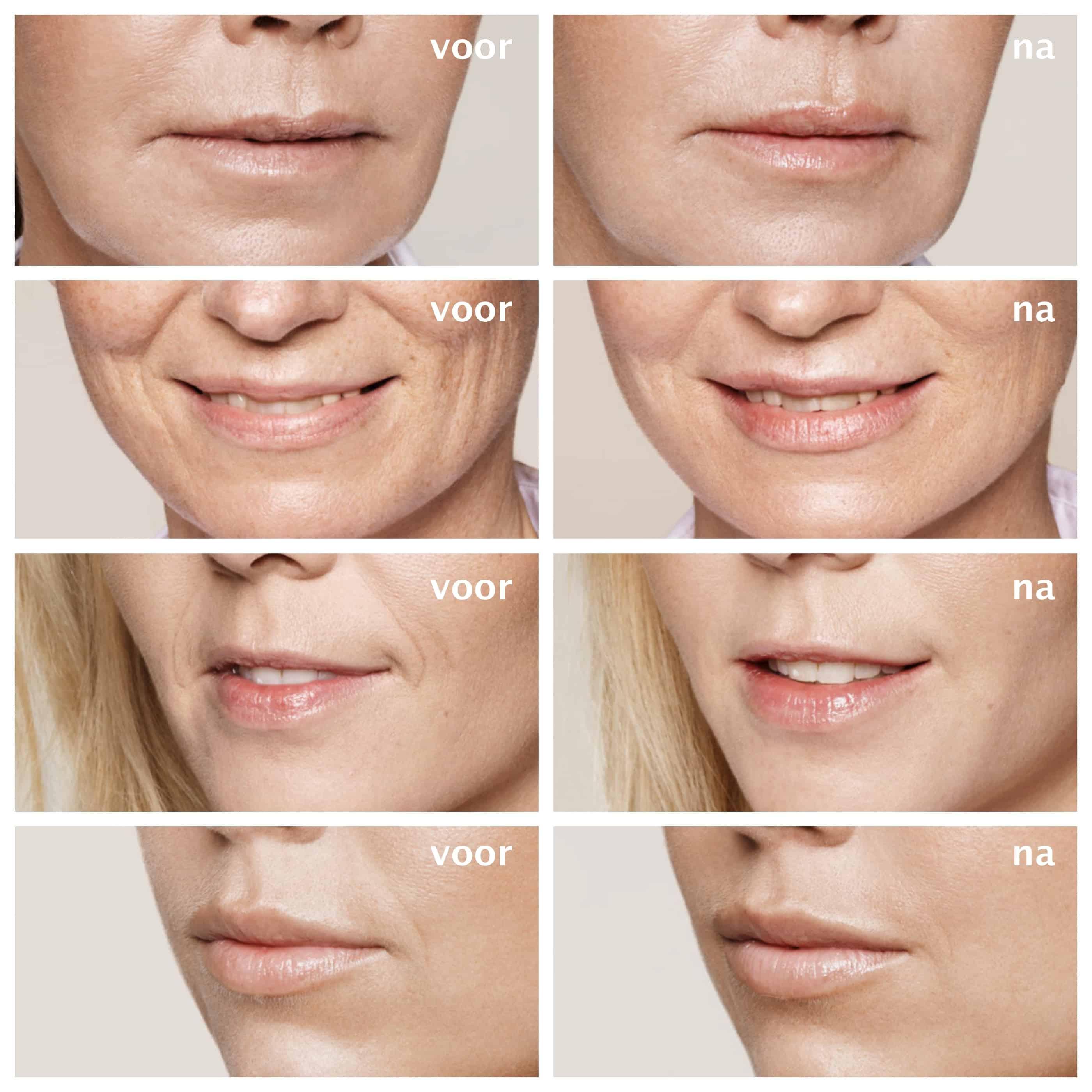 YourFace - lippen opvullen