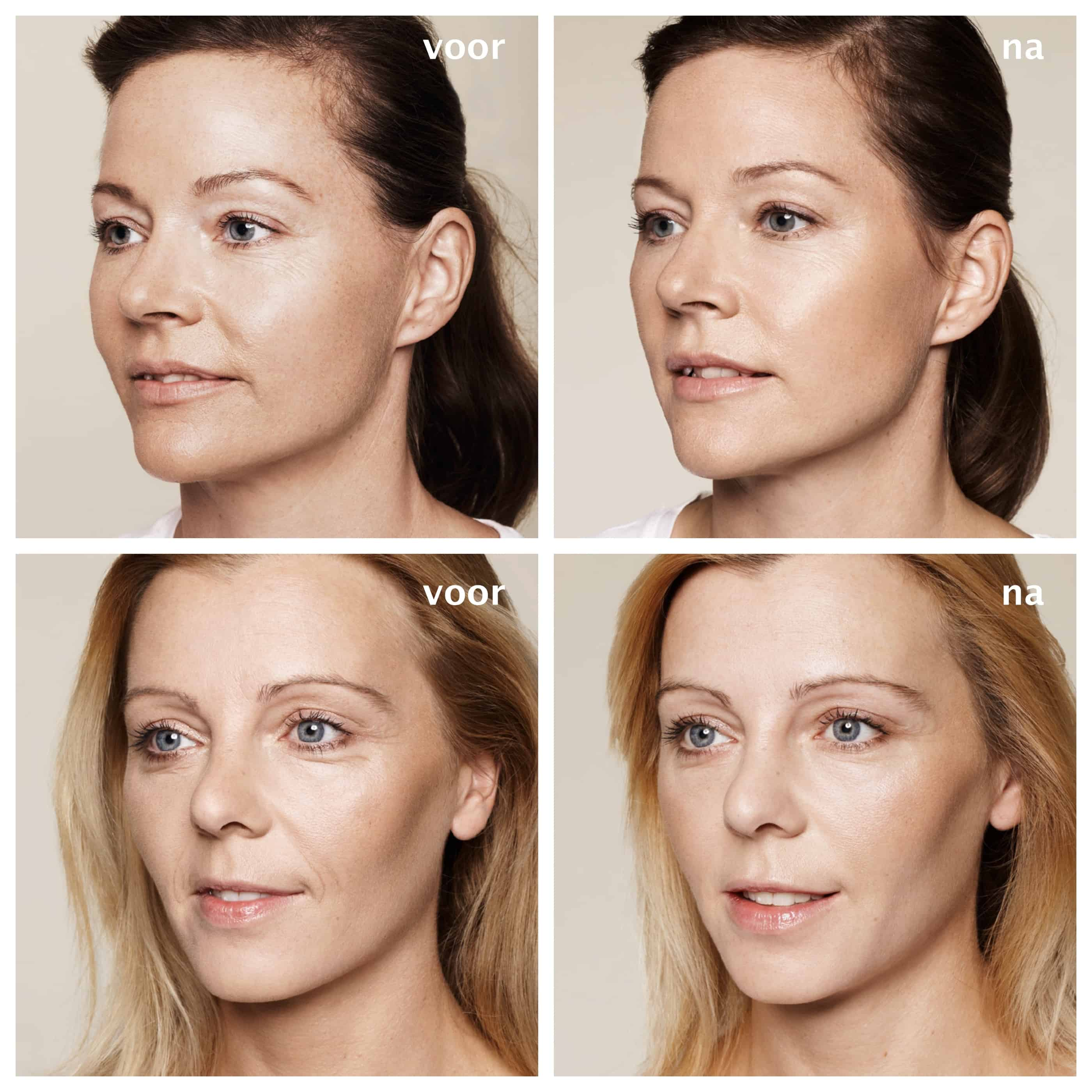 YourFace - skinboosters