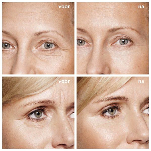 YourFace-Eyebrow Lift